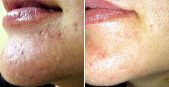 Epidermal Collagen Induction Therapy (ECIT) can stimulate the skin's natural ability to heal itself. As a result, new collagen and elastin produce softer, firmer skin and can reduce the appearance of wrinkles, acne scars and textural issues. Typically, the skin has a nice glow immediately following an Eclipse MicroPen micro-needling session. Results can be observed in as early as 30 days.