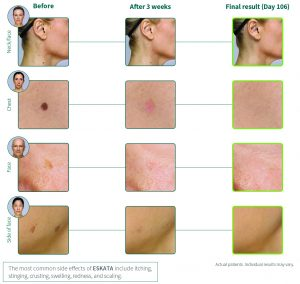 Eskata Raised Age Spot Treatment before and after